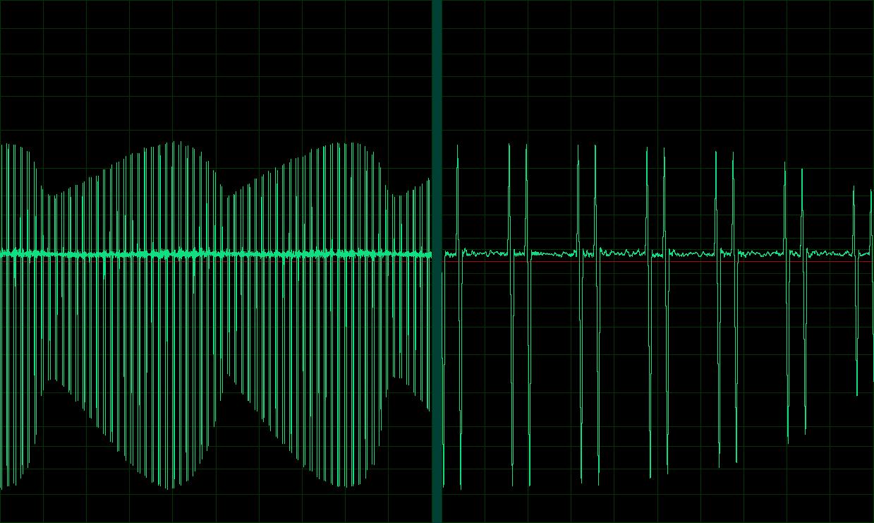 MP3-Frequenzmuster - Erotische Elektrostimulation